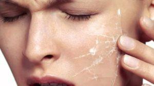 как выглядит обезвоженная кожа лица фото